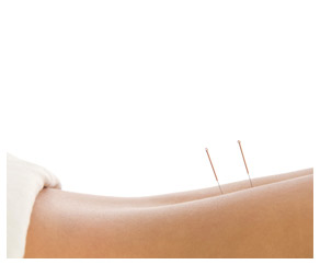 acupuncture, trapped nerve, tennis elbow cure